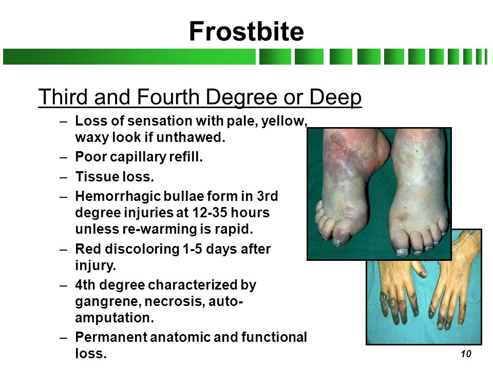 10 Frostbite Third and Fourth Degree or Deep –Loss of sensation with pale, yellow, waxy look if unthawed. –Poor capillary refill. –Tissue loss. –Hemor