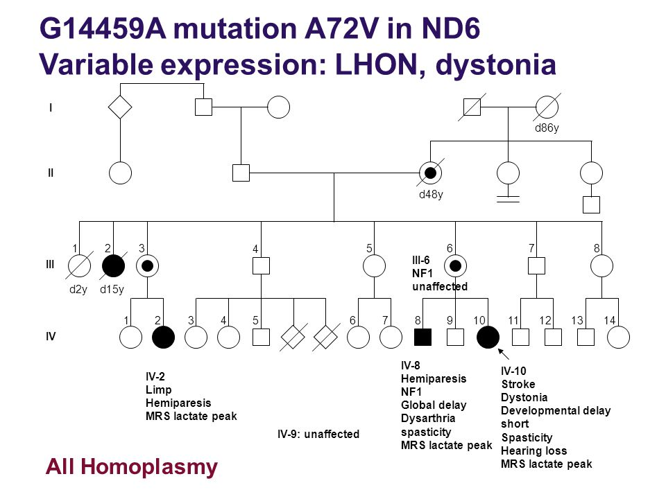 G14459A mutation A72V in ND6 Variable expression: LHON, dystonia IV-2 Limp Hemiparesis MRS lactate peak IV-8 Hemiparesis NF1 Global delay Dysarthria s