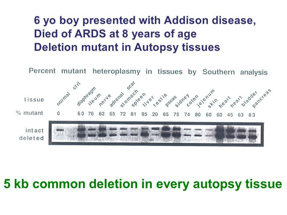 6 yo boy presented with Addison disease, Died of ARDS at 8 years of age Deletion mutant in Autopsy tissues 5 kb common deletion in every autopsy tissu