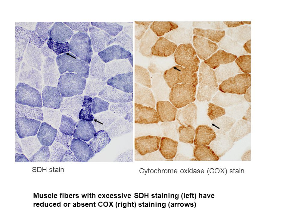 SDH stain Muscle fibers with excessive SDH staining (left) have reduced or absent COX (right) staining (arrows)
