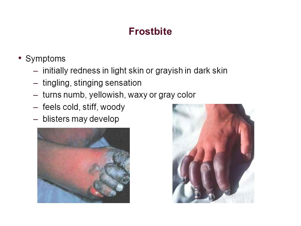 Frostbite Symptoms –initially redness in light skin or grayish in dark skin –tingling, stinging sensation –turns numb, yellowish, waxy or gray color –