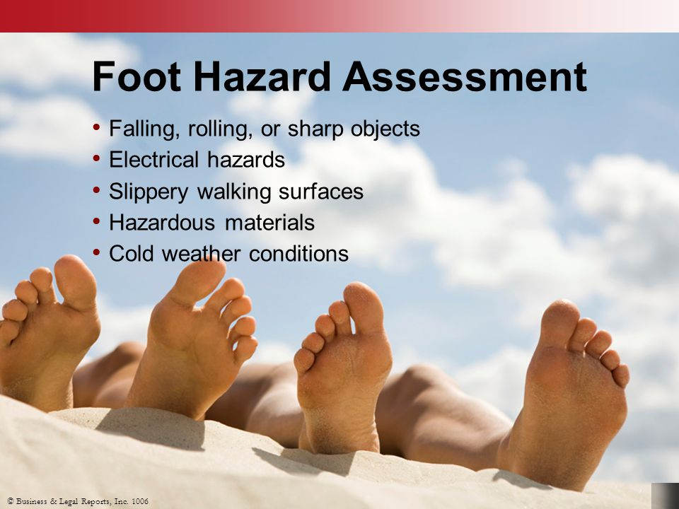 Foot Hazard Assessment Falling, rolling, or sharp objects Electrical hazards Slippery walking surfaces Hazardous materials Cold weather conditions © B