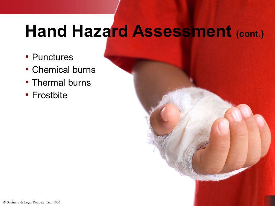 © Business & Legal Reports, Inc. 1006 Hand Hazard Assessment (cont.) Punctures Chemical burns Thermal burns Frostbite