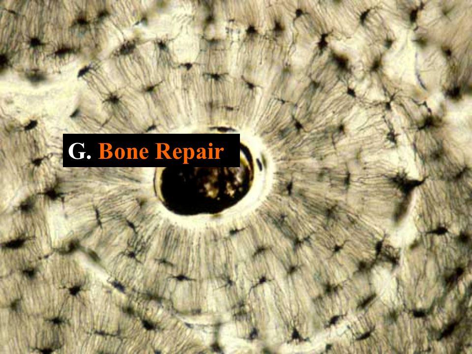 G. Bone Repair