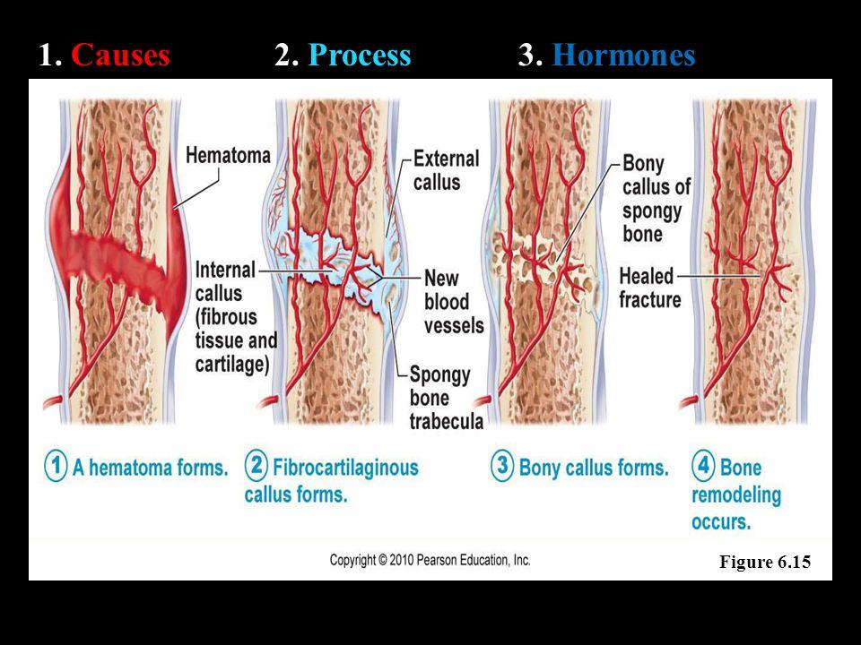 1. Causes2. Process3. Hormones Figure 6.15