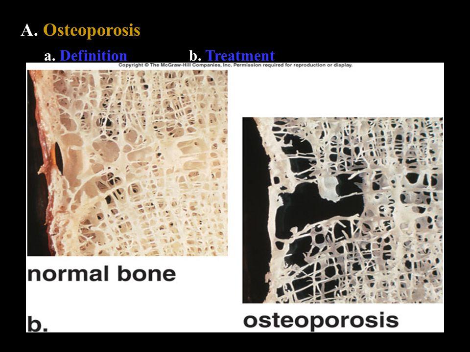 A. Osteoporosis a. Definitionb. Treatment