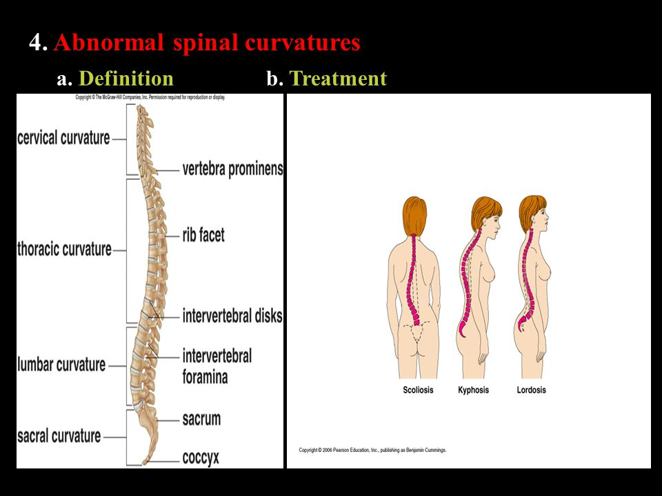 4. Abnormal spinal curvatures a. Definitionb. Treatment