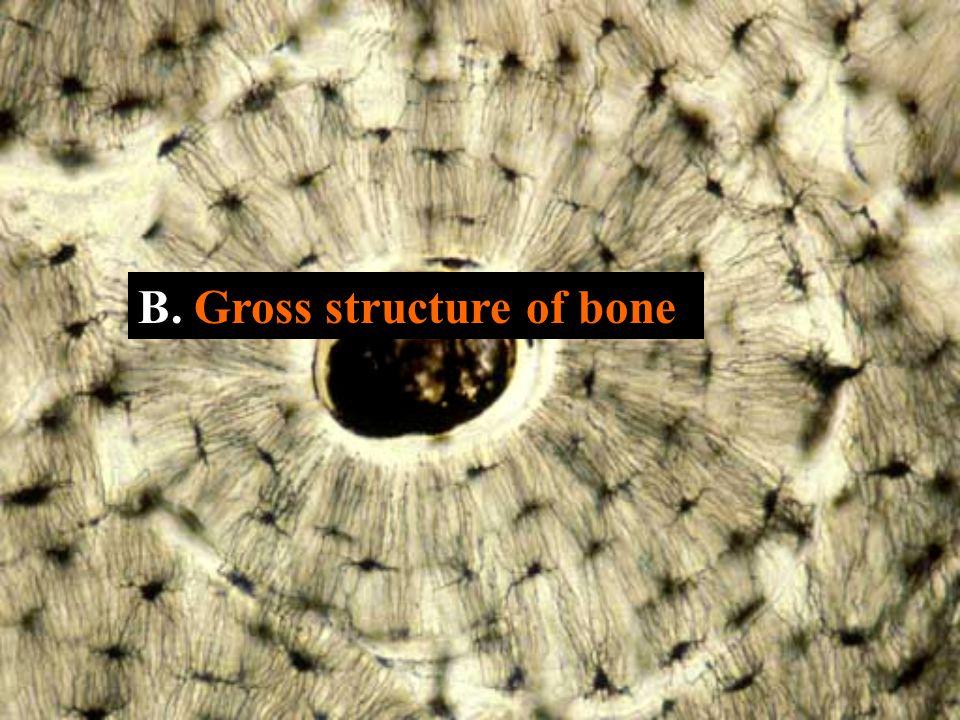 B. Gross structure of bone