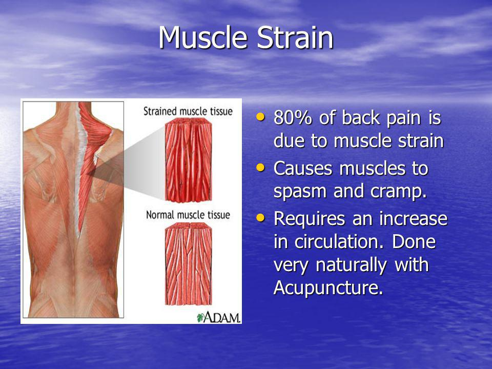 Muscle Strain 80% of back pain is due to muscle strain 80% of back pain is due to muscle strain Causes muscles to spasm and cramp. Causes muscles to s