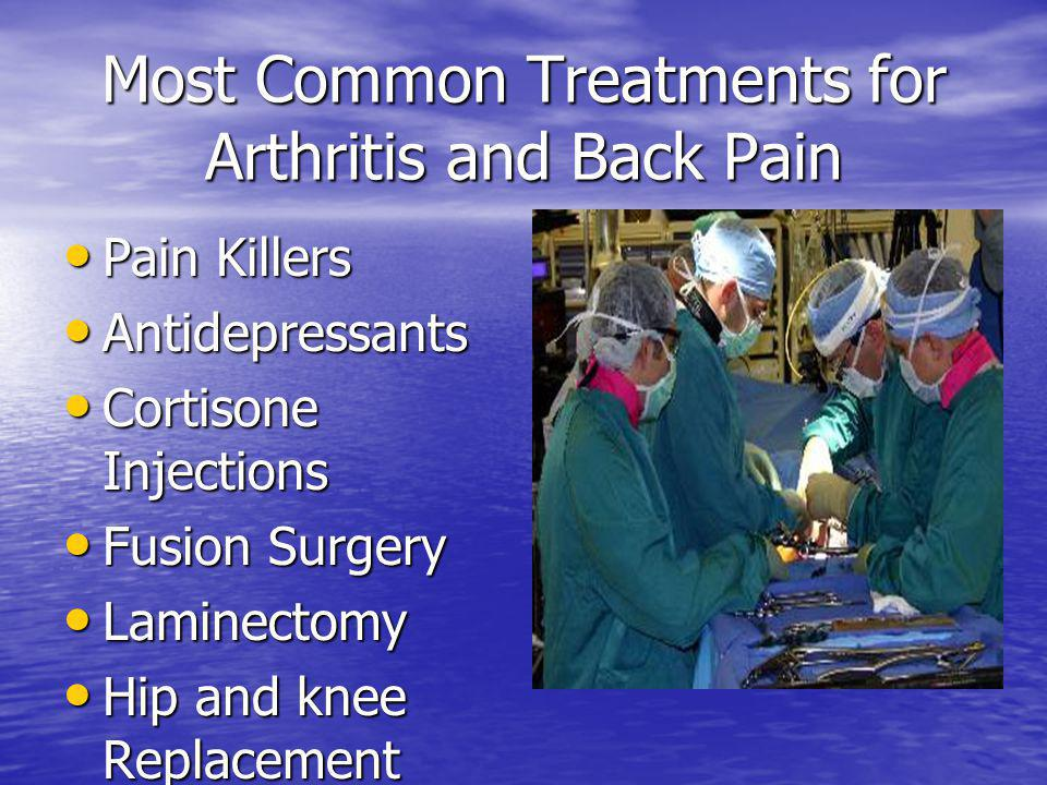 Most Common Treatments for Arthritis and Back Pain Pain Killers Pain Killers Antidepressants Antidepressants Cortisone Injections Cortisone Injections