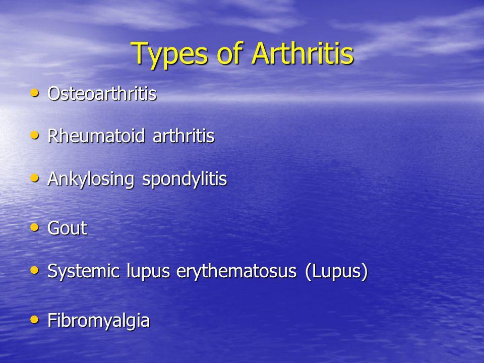 Types of Arthritis Osteoarthritis Osteoarthritis Rheumatoid arthritis Rheumatoid arthritis Ankylosing spondylitis Ankylosing spondylitis Gout Gout Systemic lupus erythematosus (Lupus) Systemic lupus erythematosus (Lupus) Fibromyalgia Fibromyalgia