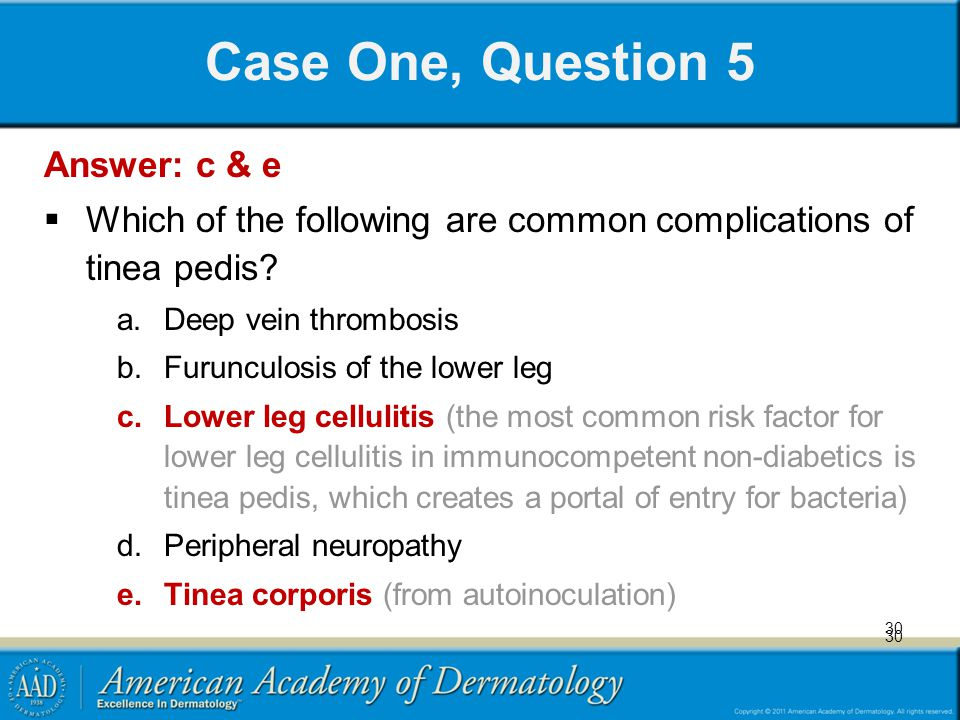 30 Case One, Question 5 Answer: c & e Which of the following are common complications of tinea pedis? a.Deep vein thrombosis b.Furunculosis of the low