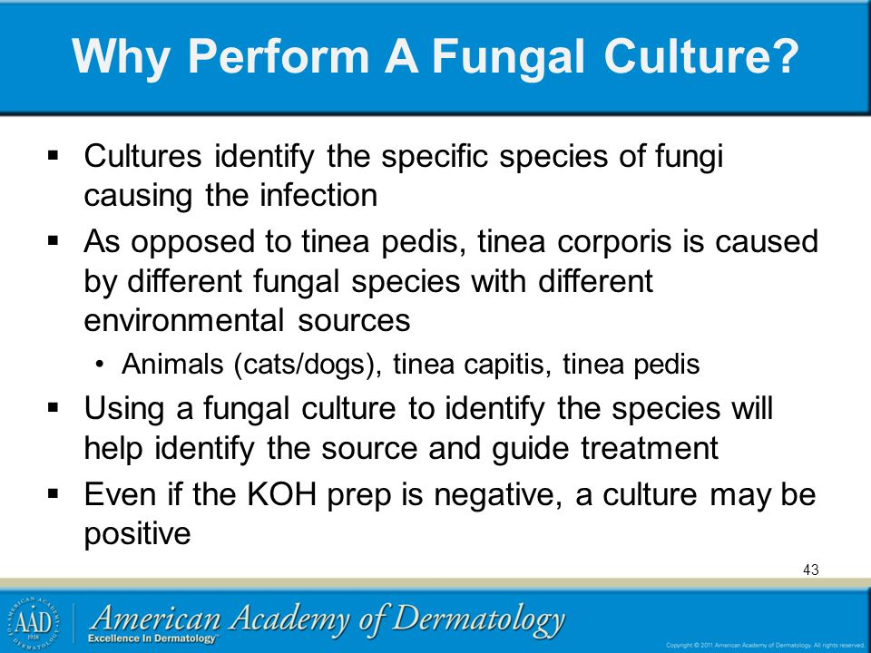 43 Why Perform A Fungal Culture? Cultures identify the specific species of fungi causing the infection As opposed to tinea pedis, tinea corporis is ca