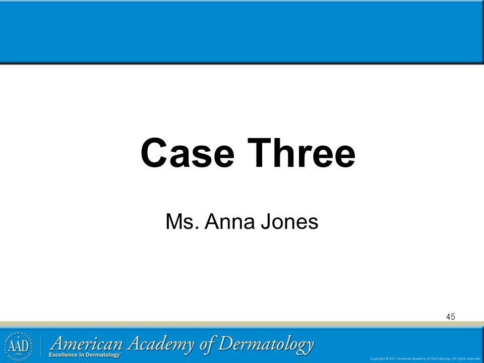 45 Case Three Ms. Anna Jones