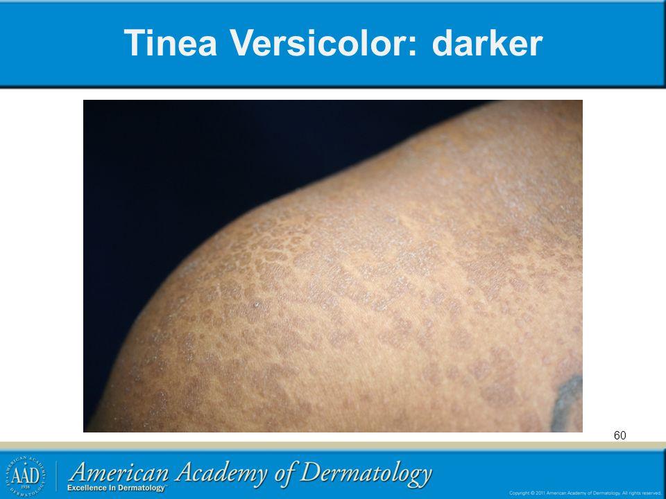 Tinea Versicolor: darker 60