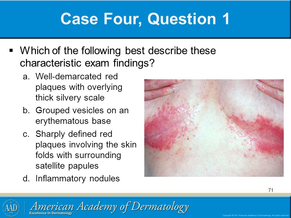 71 Case Four, Question 1 a.Well-demarcated red plaques with overlying thick silvery scale b.Grouped vesicles on an erythematous base c.Sharply defined