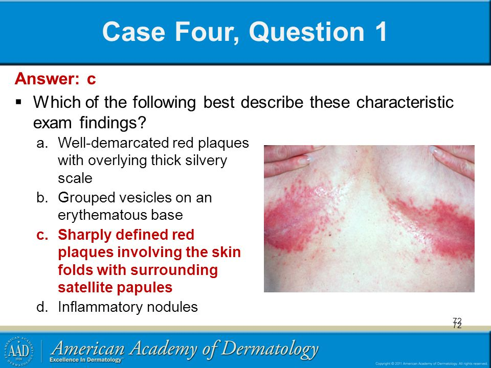72 Case Four, Question 1 a.Well-demarcated red plaques with overlying thick silvery scale b.Grouped vesicles on an erythematous base c.Sharply defined