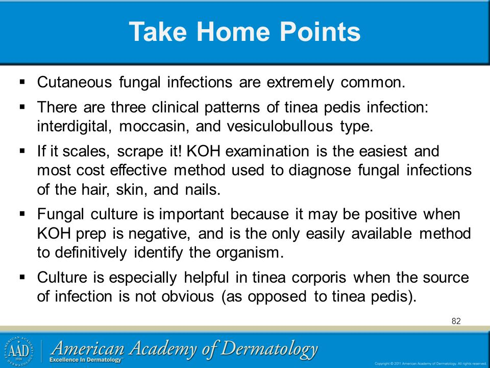 Take Home Points Cutaneous fungal infections are extremely common. There are three clinical patterns of tinea pedis infection: interdigital, moccasin,