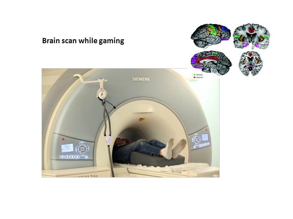 Brain scan while gaming