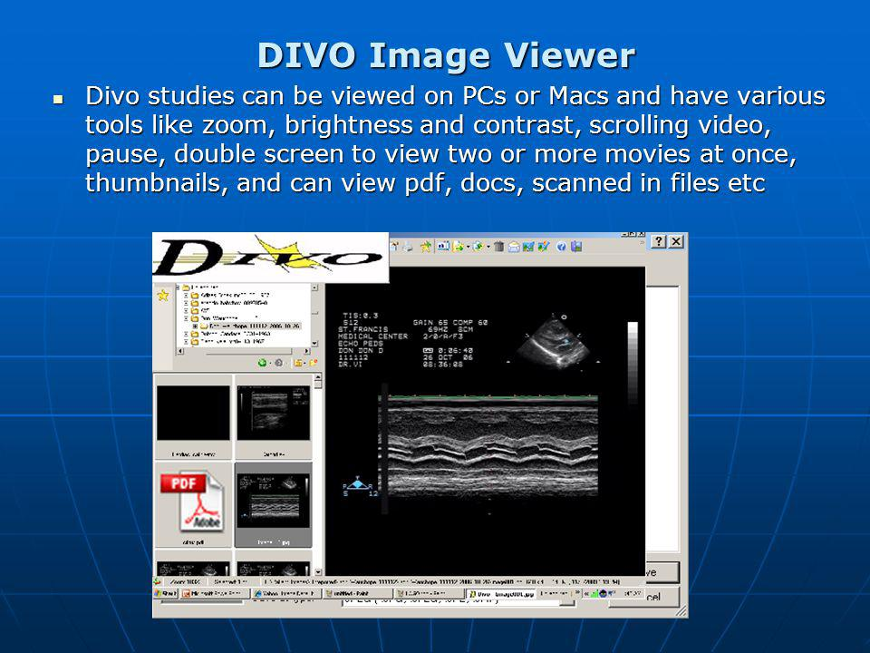 DIVO Image Viewer Divo studies can be viewed on PCs or Macs and have various tools like zoom, brightness and contrast, scrolling video, pause, double screen to view two or more movies at once, thumbnails, and can view pdf, docs, scanned in files etc Divo studies can be viewed on PCs or Macs and have various tools like zoom, brightness and contrast, scrolling video, pause, double screen to view two or more movies at once, thumbnails, and can view pdf, docs, scanned in files etc