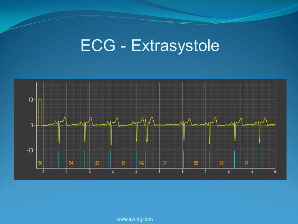 ECG - Extrasystole www.ssi-bg.com