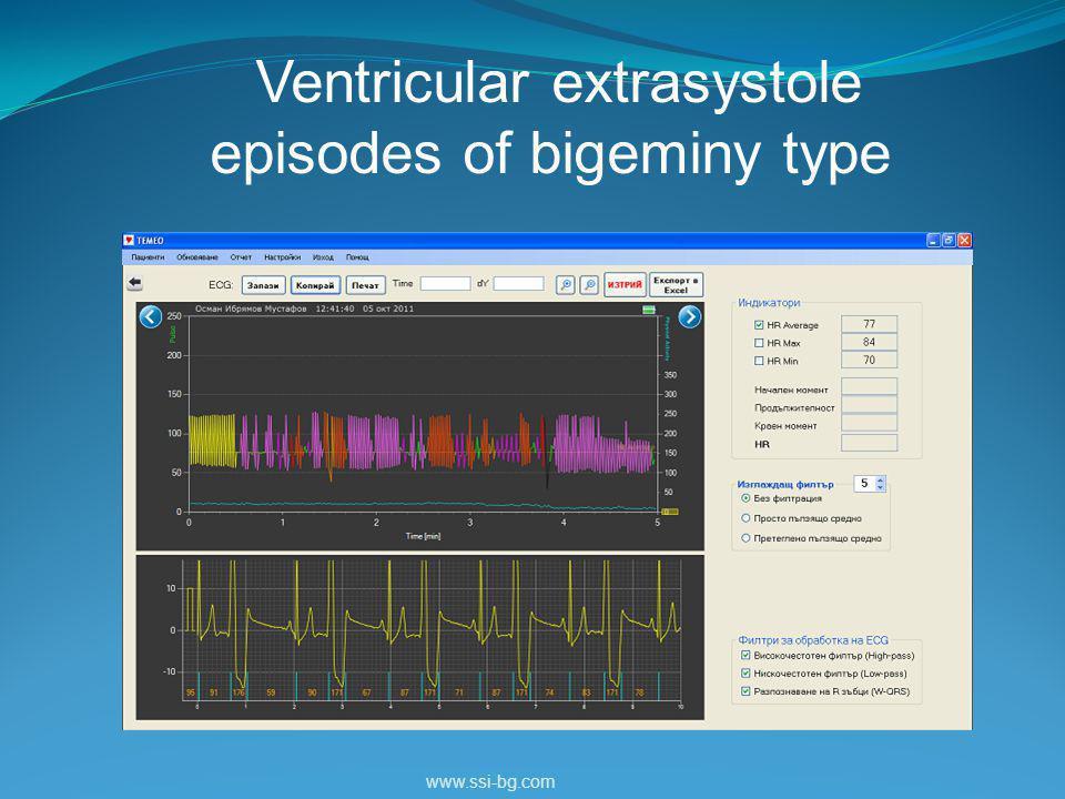 Ventricular extrasystole episodes of bigeminy type