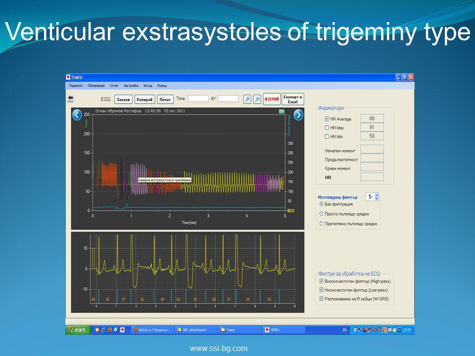 Venticular exstrasystoles of trigeminy type