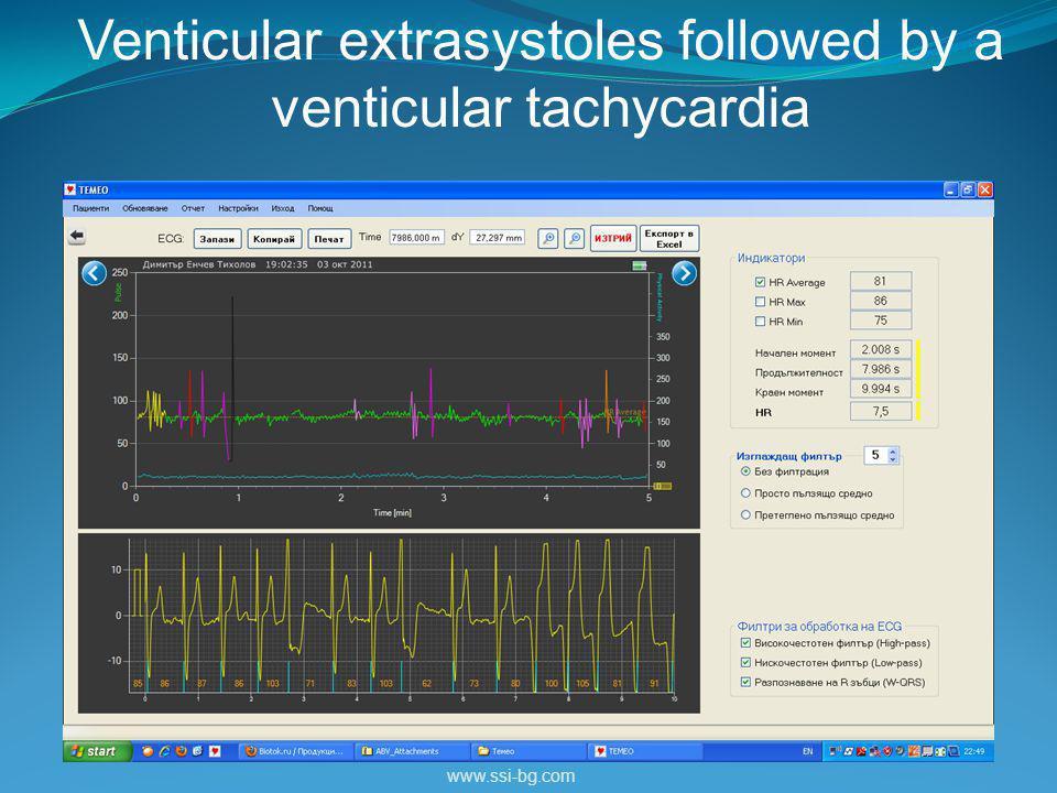 www.ssi-bg.com Venticular extrasystoles followed by a venticular tachycardia