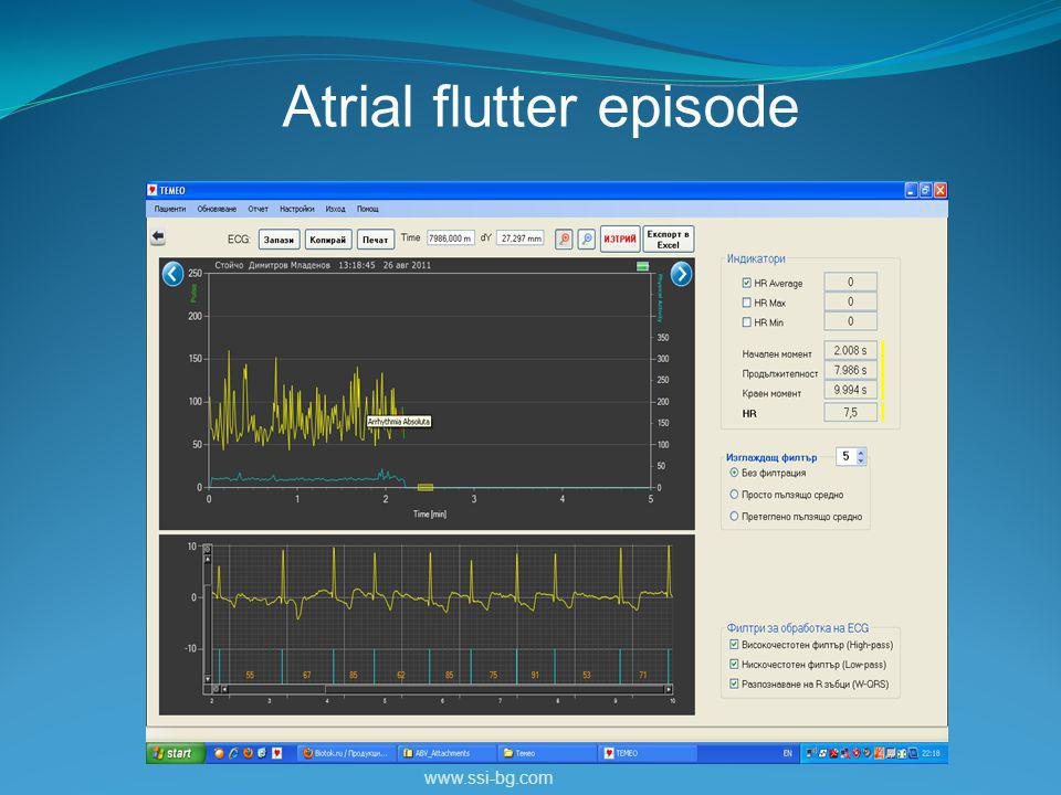 www.ssi-bg.com Atrial flutter episode
