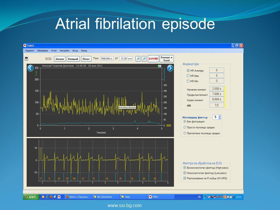 www.ssi-bg.com Atrial fibrilation episode