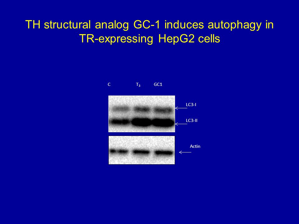 TH structural analog GC-1 induces autophagy in TR-expressing HepG2 cells Actin LC3-II LC3-I T3T3 CGC1