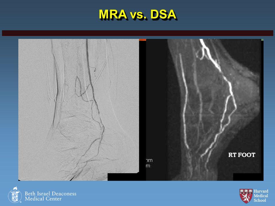 Harvard Medical School MRA vs. DSA