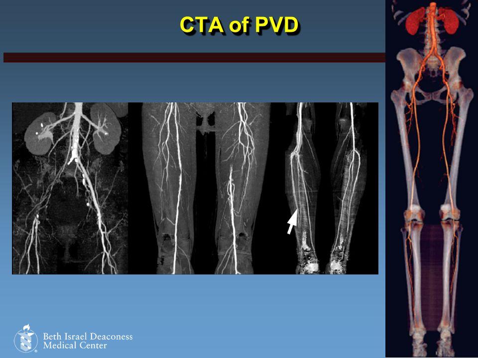 Harvard Medical School CTA of PVD