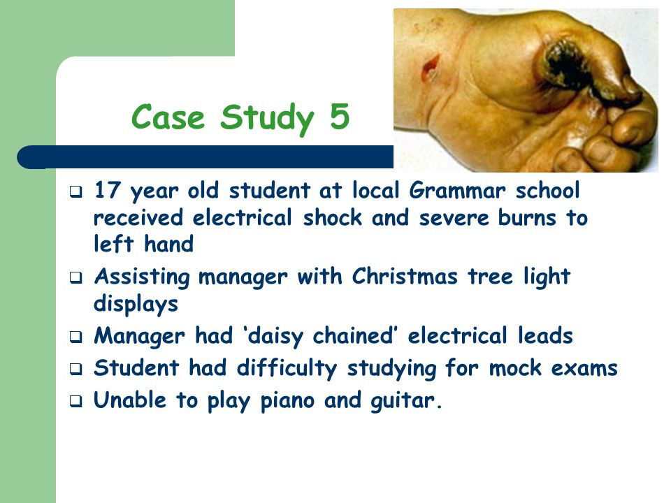 17 year old student at local Grammar school received electrical shock and severe burns to left hand Assisting manager with Christmas tree light displa