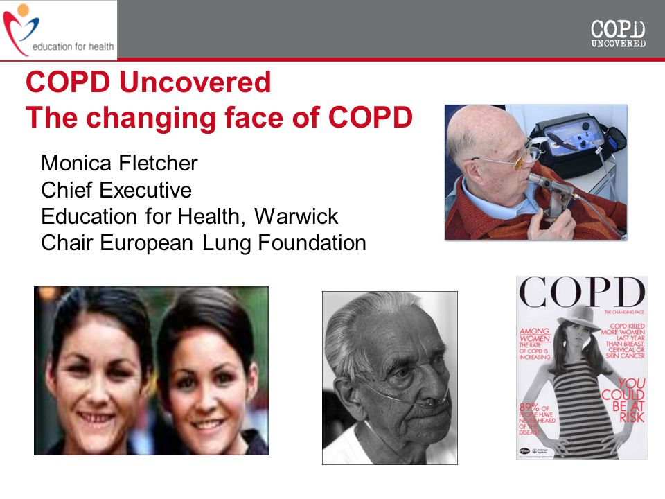 COPD Uncovered The changing face of COPD Monica Fletcher Chief Executive Education for Health, Warwick Chair European Lung Foundation
