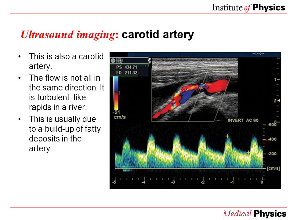 Ultrasound imaging: carotid artery This is also a carotid artery. The flow is not all in the same direction. It is turbulent, like rapids in a river.