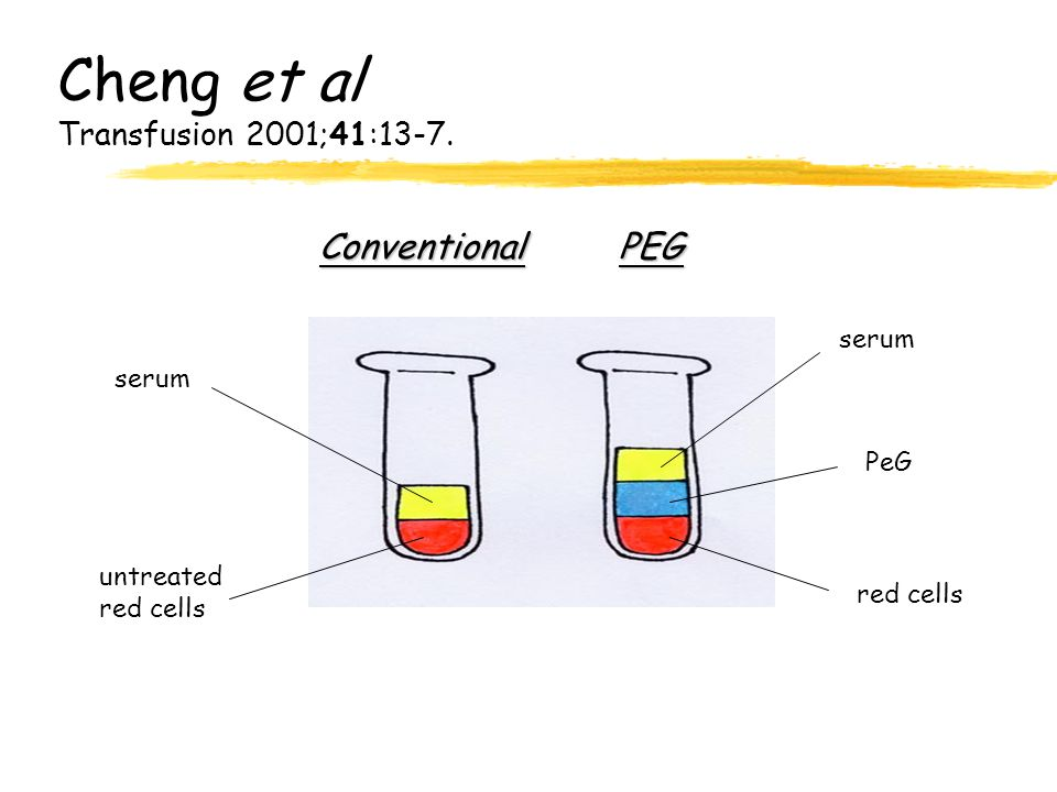 Cheng et al Transfusion 2001;41:13-7. PEGConventional serum PeG red cells serum untreated red cells