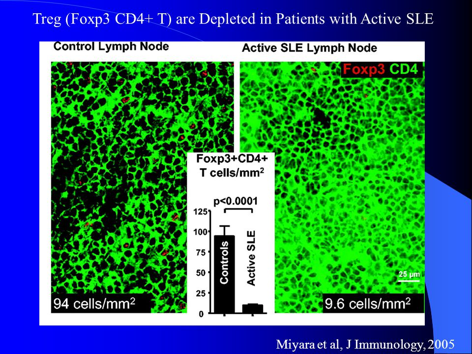 Miyara et al, J Immunology, 2005 Treg (Foxp3 CD4+ T) are Depleted in Patients with Active SLE