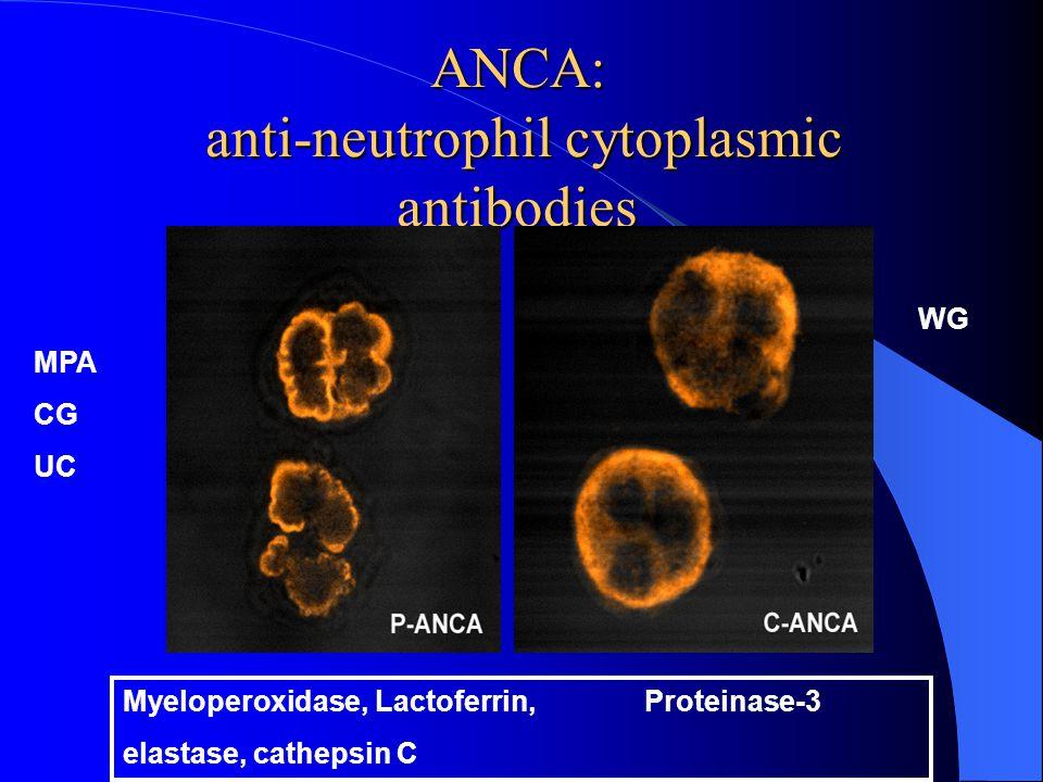 ANCA: anti-neutrophil cytoplasmic antibodies Myeloperoxidase, Lactoferrin, Proteinase-3 elastase, cathepsin C WG MPA CG UC