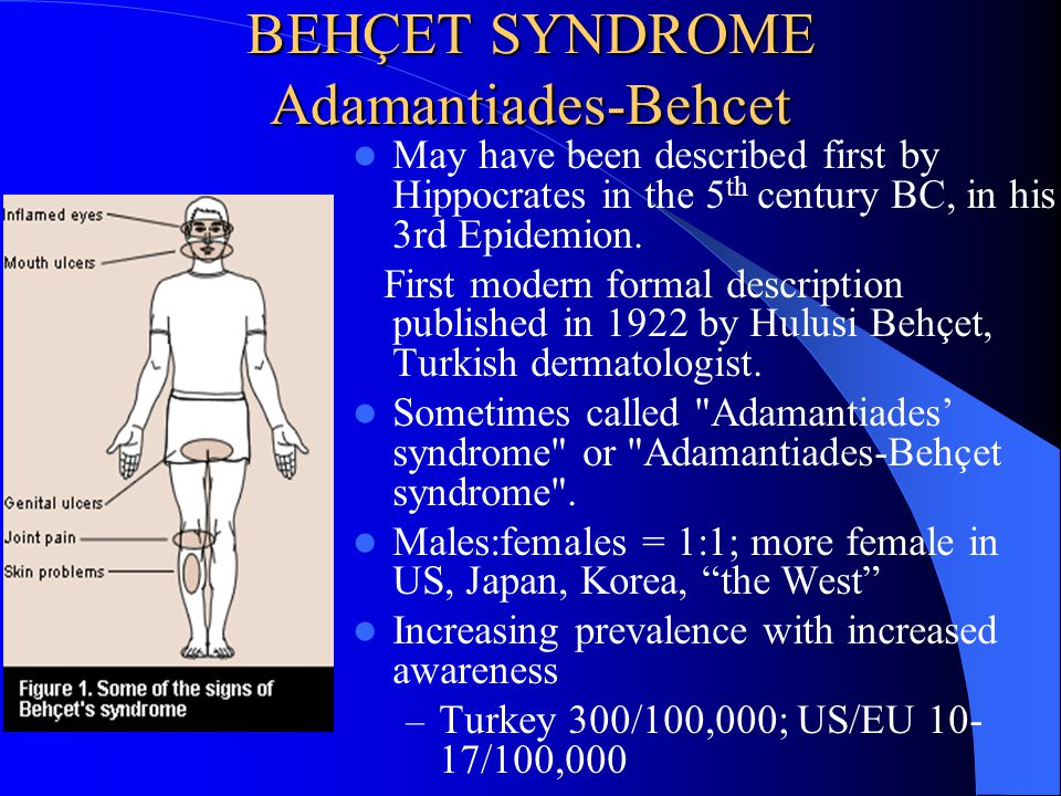 BEHÇET SYNDROME Adamantiades-Behcet May have been described first by Hippocrates in the 5 th century BC, in his 3rd Epidemion. First modern formal des