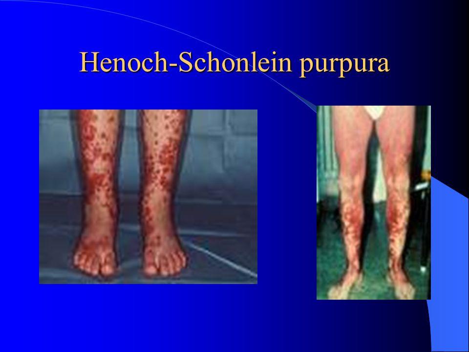 Henoch-Schonlein purpura