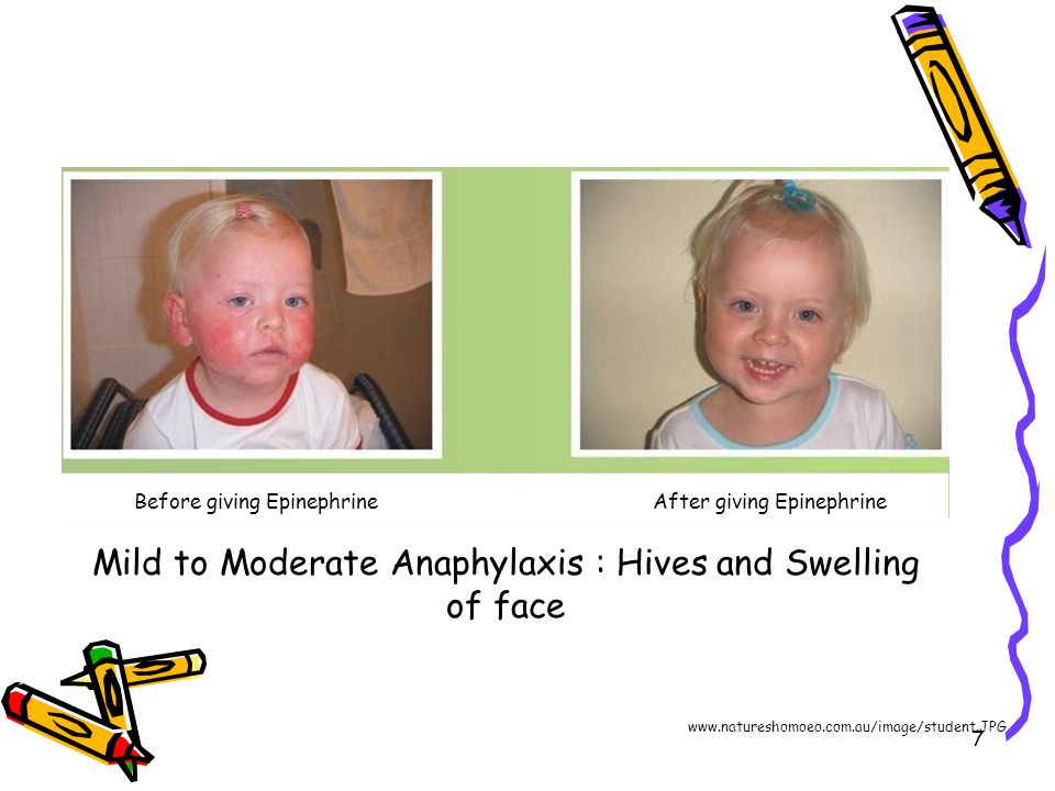 7 Mild to Moderate Anaphylaxis : Hives and Swelling of face Before giving EpinephrineAfter giving Epinephrine www.natureshomoeo.com.au/image/student.J
