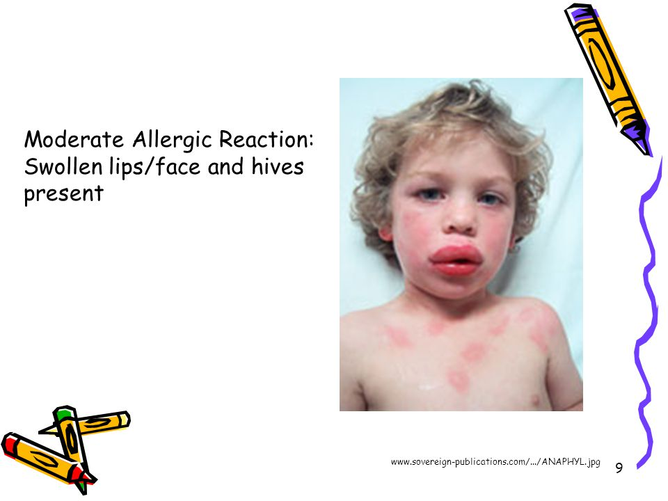 9 Moderate Allergic Reaction: Swollen lips/face and hives present www.sovereign-publications.com/.../ANAPHYL.jpg