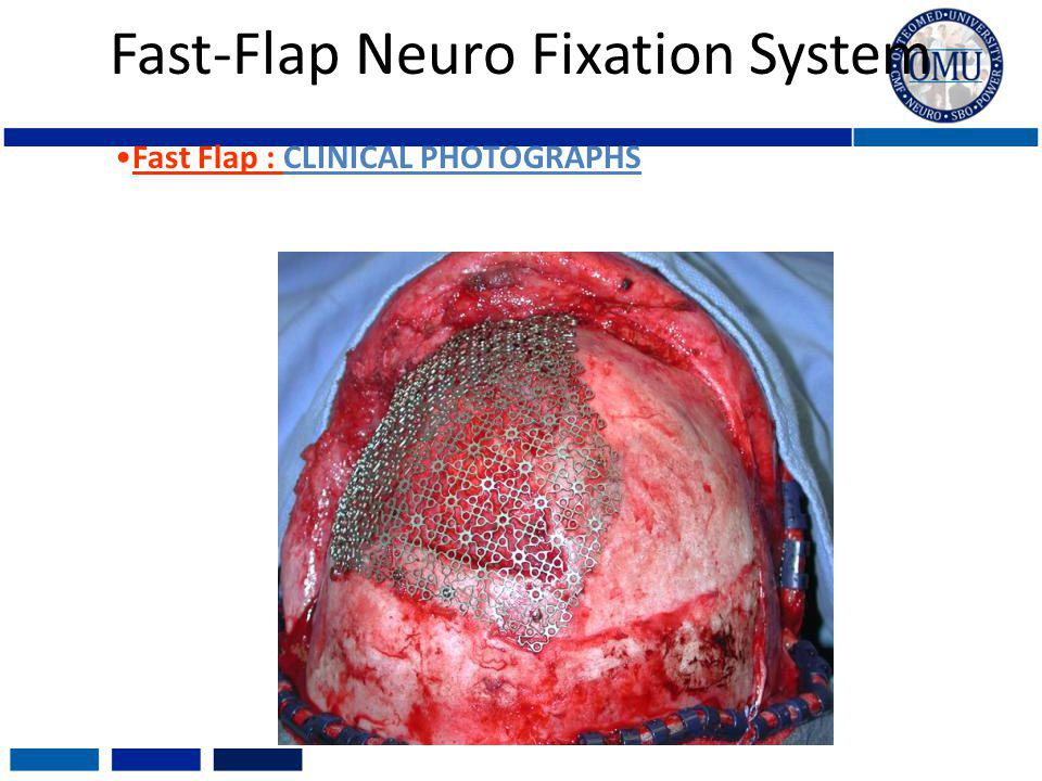 Fast-Flap Neuro Fixation System Fast Flap : CLINICAL PHOTOGRAPHS
