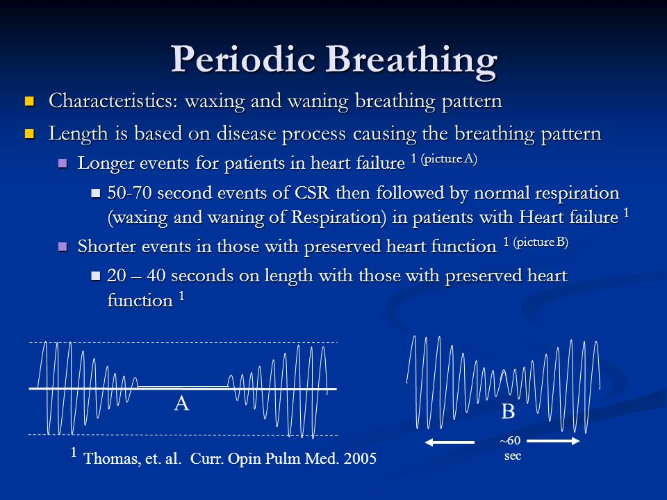 Periodic Breathing Characteristics: waxing and waning breathing pattern Characteristics: waxing and waning breathing pattern Length is based on diseas