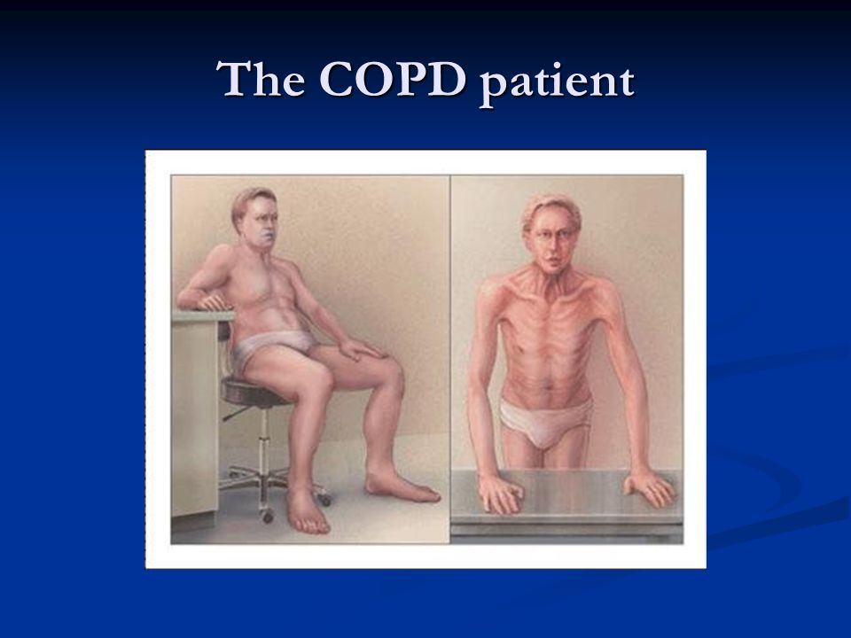 The COPD patient