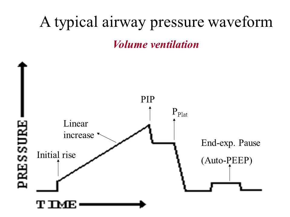 Airway Pressure Sites of Measurement Directly at proximal airway At the inspiratory valve At the expiratory valve To approximate airway pressure durin