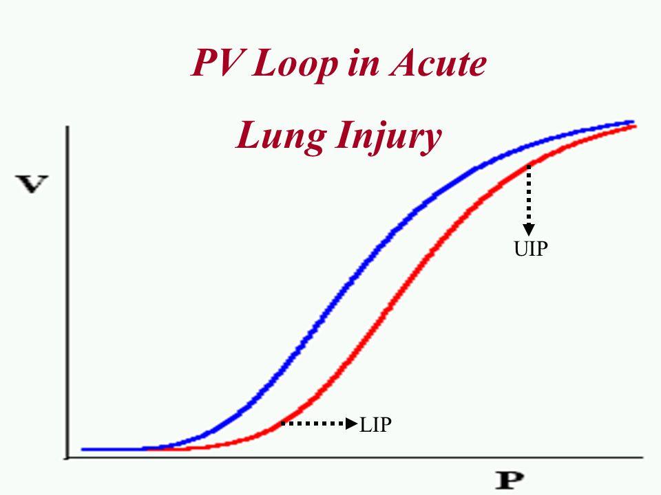 Normal PV Loop