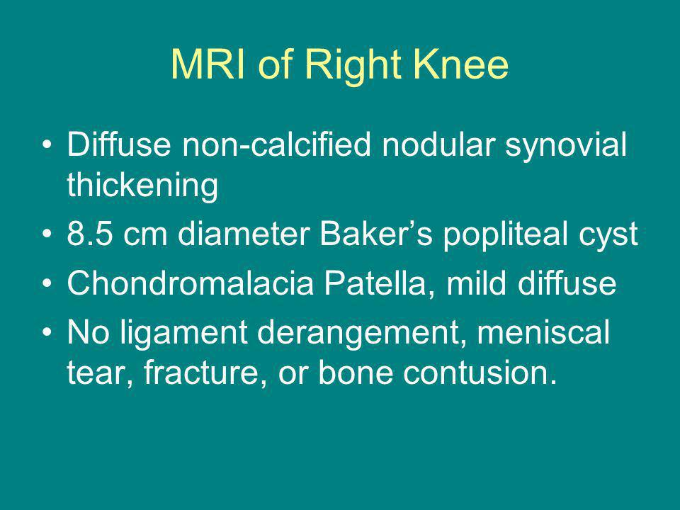 MRI of Right Knee Diffuse non-calcified nodular synovial thickening 8.5 cm diameter Bakers popliteal cyst Chondromalacia Patella, mild diffuse No ligament derangement, meniscal tear, fracture, or bone contusion.