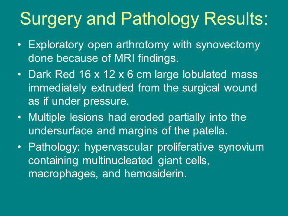 Surgery and Pathology Results: Exploratory open arthrotomy with synovectomy done because of MRI findings.
